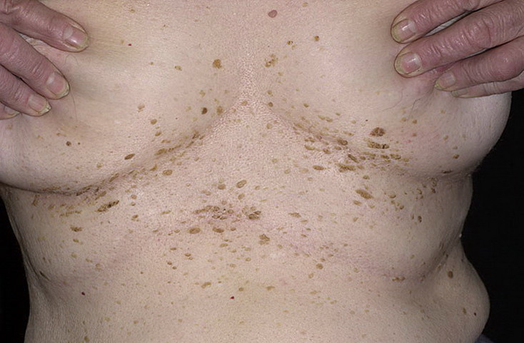 Папилломы под грудью