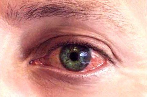 Картинки по запросу герпес глаз