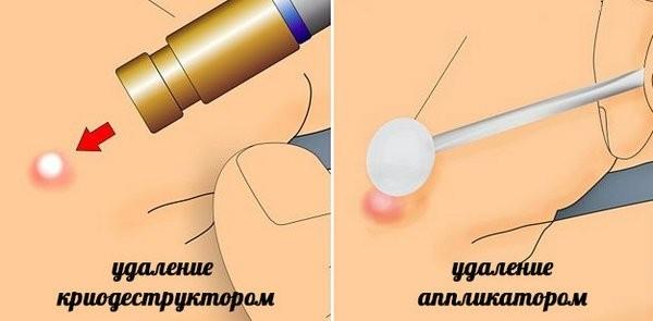 Как удаляется бородавка жидким азотом