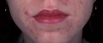 Себорейный дерматит на лице: симптомы и лечение.