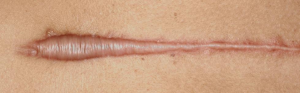 Гипертрофические рубцы