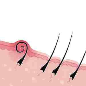 Схема вростания волос