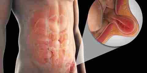 Паховая грыжа может быть вызвана подъемом тяжестей