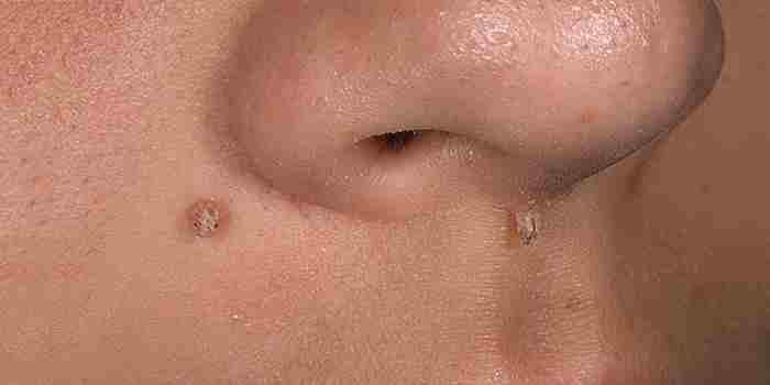 Причины появления, описание и методы лечения бородавок на лице фото