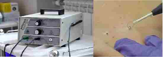 сургитрон аппарат от бородавок
