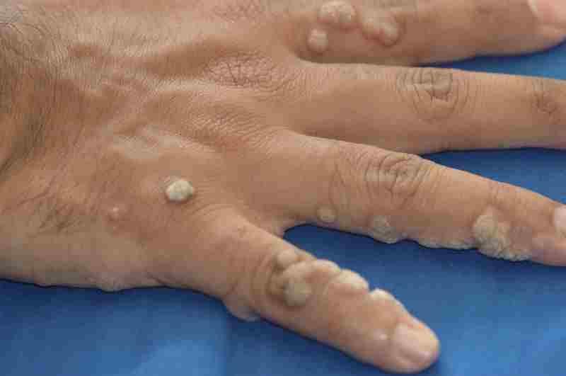 Фото бородавок на руке