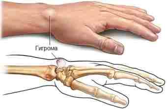 Гигрома — лечение в домашних условиях