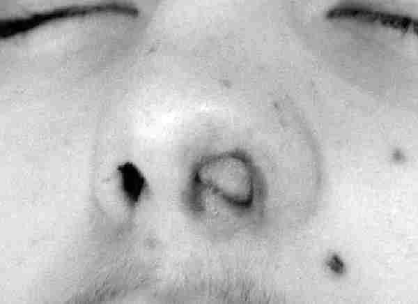Ангиофиброма человека