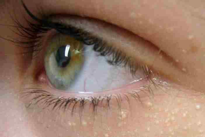 Липомы под глазами
