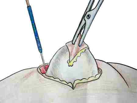 Извлечение белого жировика с помощью кюретки