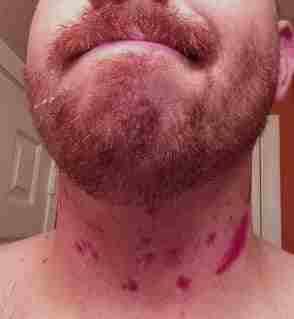 Глубокие порезы при бритье