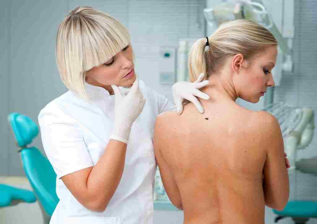 Как удалить бородавку на носу Доступные методы лечения