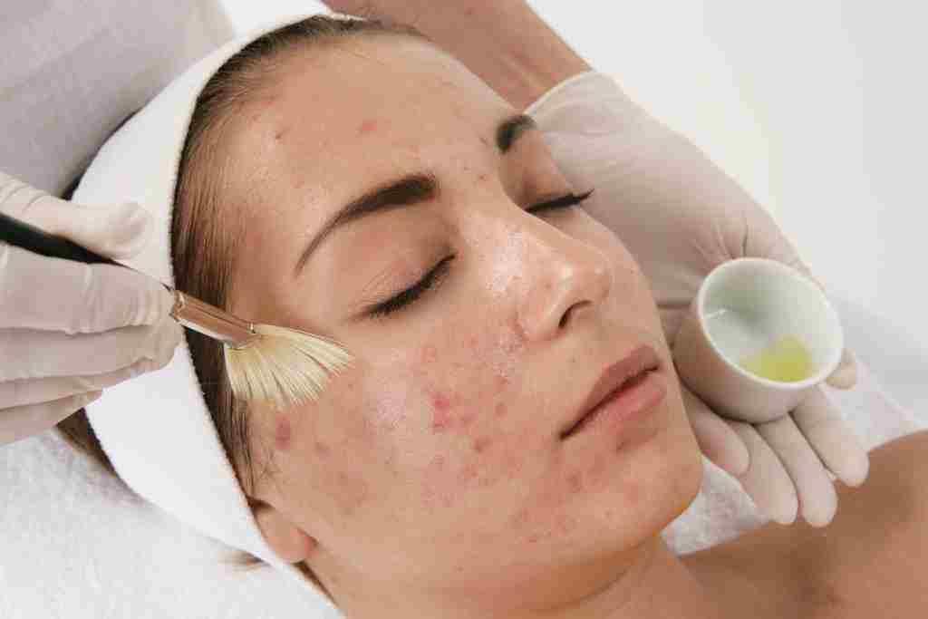 Косметолог наносит маску от угрей