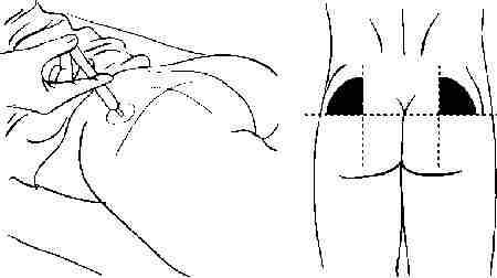 Одна из причин шишек - игла попадает в нервные окончания