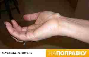 Гигрома - шишка на запястье