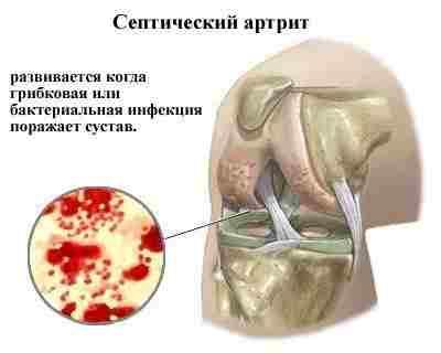 Септический артрит