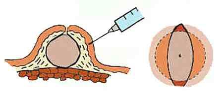 Механический способ лечения жировиков
