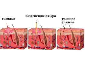 Схема удаления родинки лазером