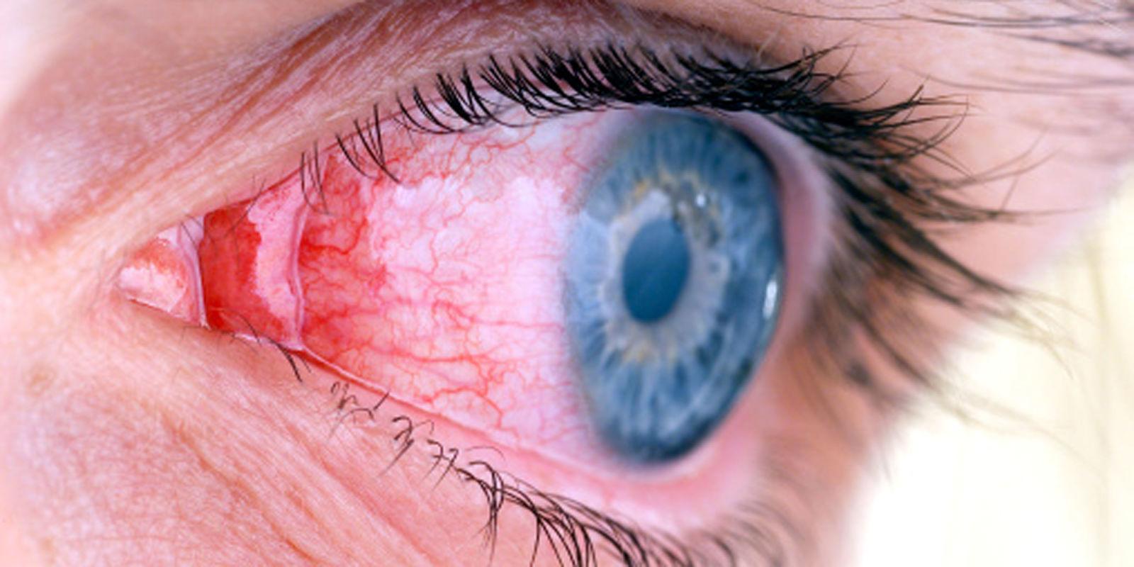 Кетароконъюнктивит осложнение ячменя