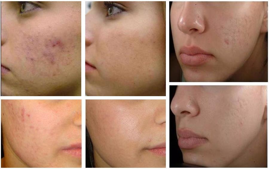 Фото-примеры акне на лице