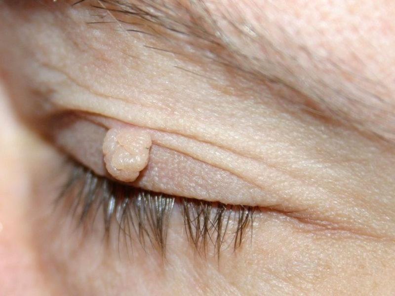 Папилломы на коже тела фото