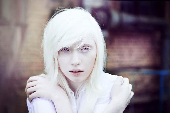 albinosy-ne-imejut-pigmenta