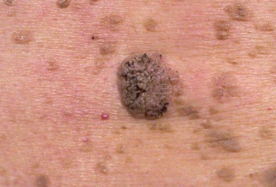 Плоскоклеточная папиллома